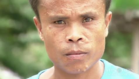 Rated K: Ang kondisyon ng malaking braso ni Bernardo Image Thumbnail