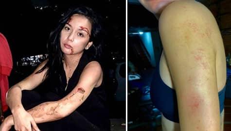 Umagang Kay Ganda: Beauty Gonzalez, isinugod sa ospital matapos mag-taping ng intense na eksena sa Kadenang Ginto Image Thumbnail